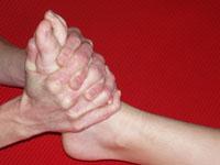 Manuele Therapie bij voetproblematiek
